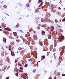 Breast Cancer Antibodies