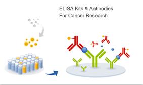 ELISA Kits and antibodies